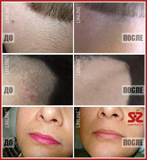 Сеть клиник лазерной косметологии