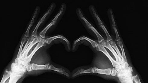 Смартфон в качестве рентгена