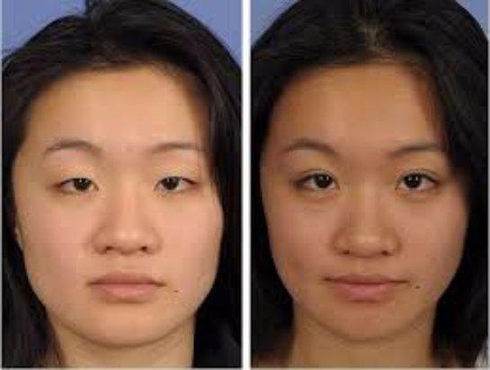 Красота кожи: блефаропластика глаз
