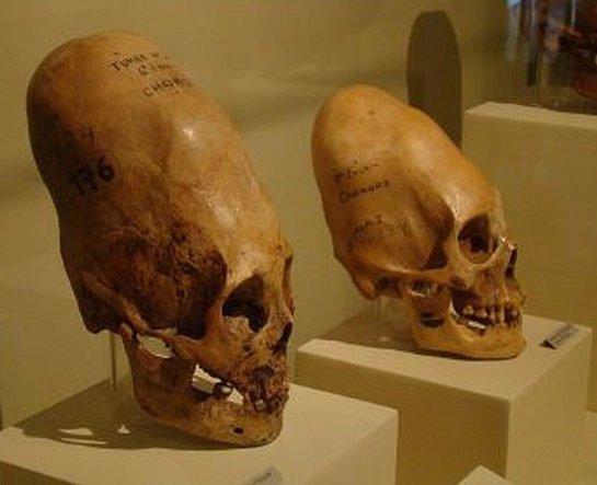 В Баксанском ущелье нашли черепа людей с вытянутыми головами
