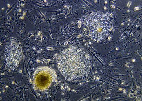 Стволовые клетки будут получать из крови пациентов