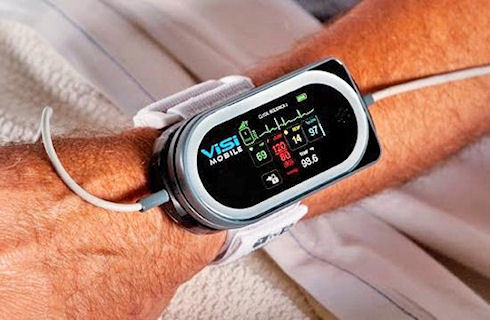 ViSi Mobile Monitor – удаленный помощник врача
