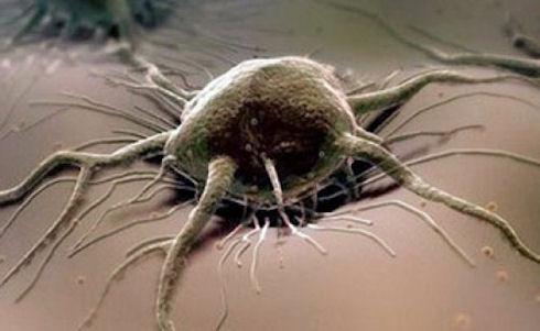 «Раковая ловушка» поможет отделять и уничтожать раковые клетки