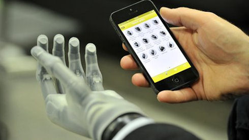 iPhone сможет управлять кибернетической рукой
