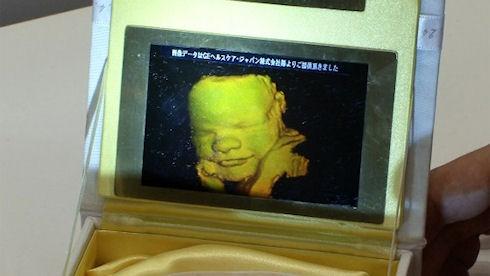 Pioneer создала устройство для придания объема изображению УЗИ