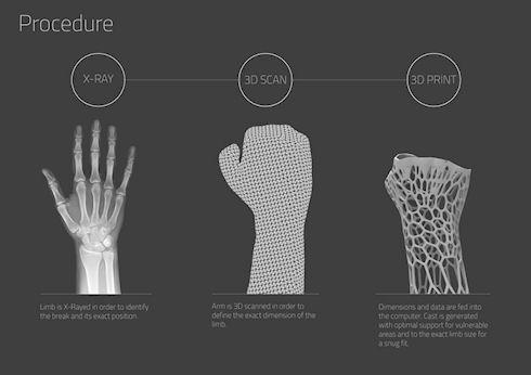 3D-печать избавит от гипса при переломах