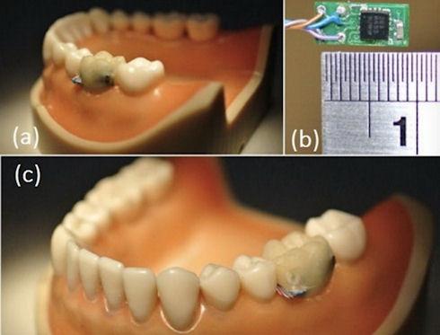 Медики получат сведения о здоровье пациента от «зубных» датчиков
