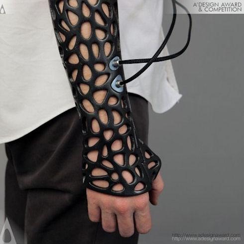 Ученые создали медицинскую шину с ультразвуковым излучателем для лечения переломов