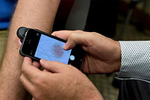 Диагностикой меланомы займется мобильное приложение
