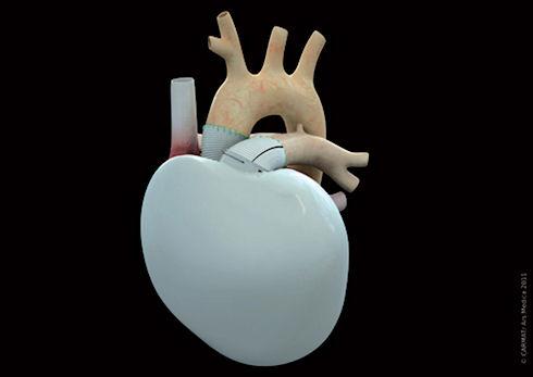 Новое искусственное сердце использует космические технологии