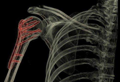 General Electric разработала уникальный сканер человеческого тела