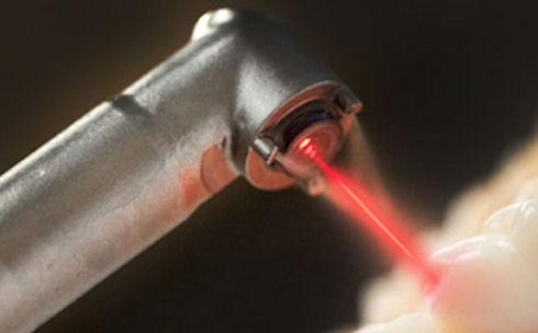 Лечение зубов светом лазера