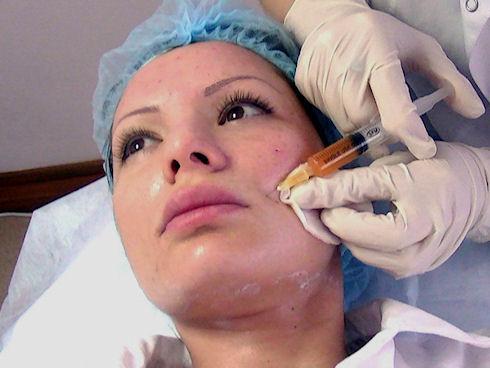 Плазмолифтинг - лечение плазмой