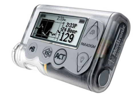 Инсулиновая помпа Медтроник – друг и защитник диабетика