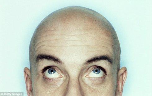 Потерянные волосы восстановит иммунитет