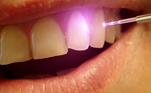 Применение лазерных технологий в стоматологии