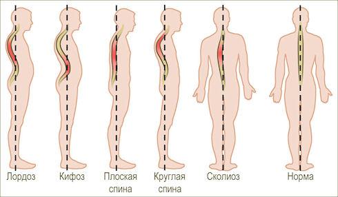 Сколиоз, кифоз, лордоз – тяжелые заболевания позвоночника