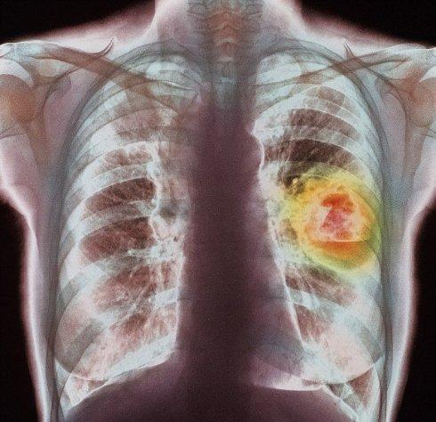 Ученые доказали, что кислород вызывает рак легких