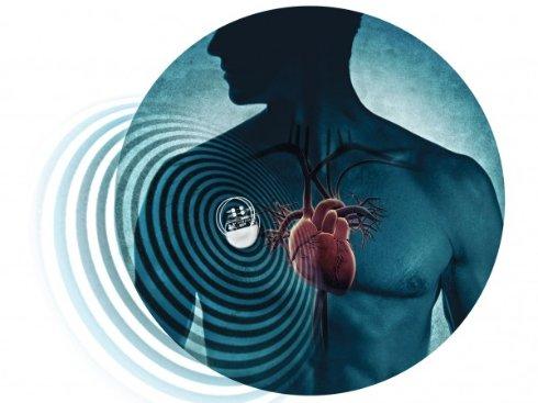 Хакеры научились убивать владельцев кардиостимуляторов